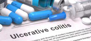 diagnosing-ulcerative-colitis