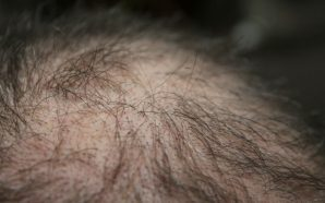 Get the Ultimate Hair Loss Treatment for Your Hair, hair loss, hair loss treatment