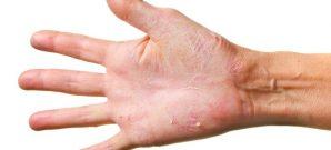 chronic eczema treatment