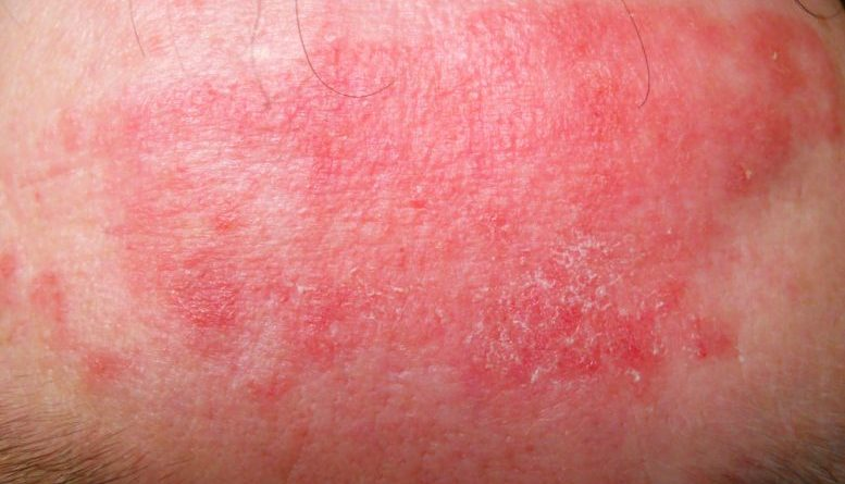dupixent dupilumab eczema treatments